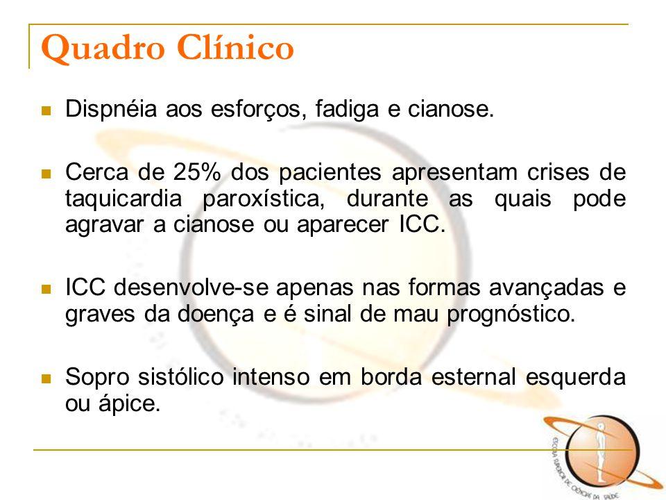 Quadro Clínico Dispnéia aos esforços, fadiga e cianose.