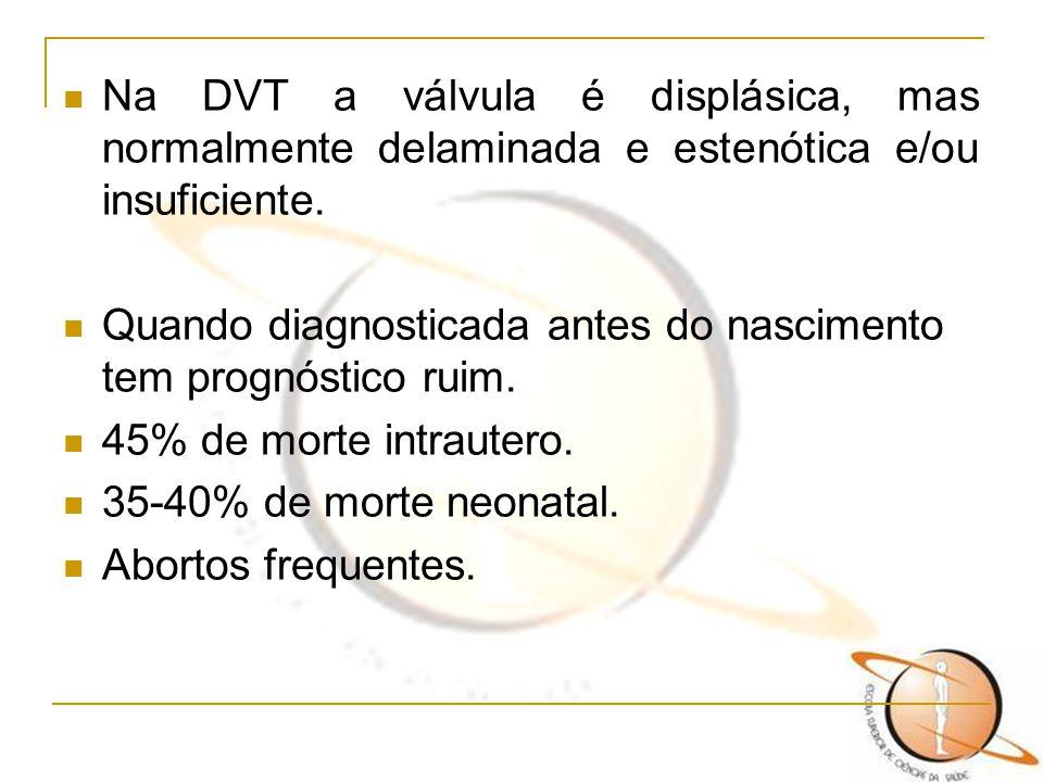 Na DVT a válvula é displásica, mas normalmente delaminada e estenótica e/ou insuficiente.