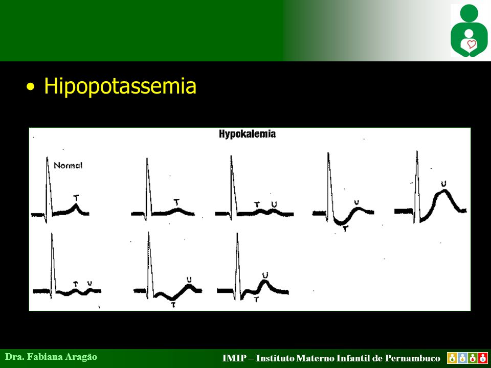 Hipopotassemia