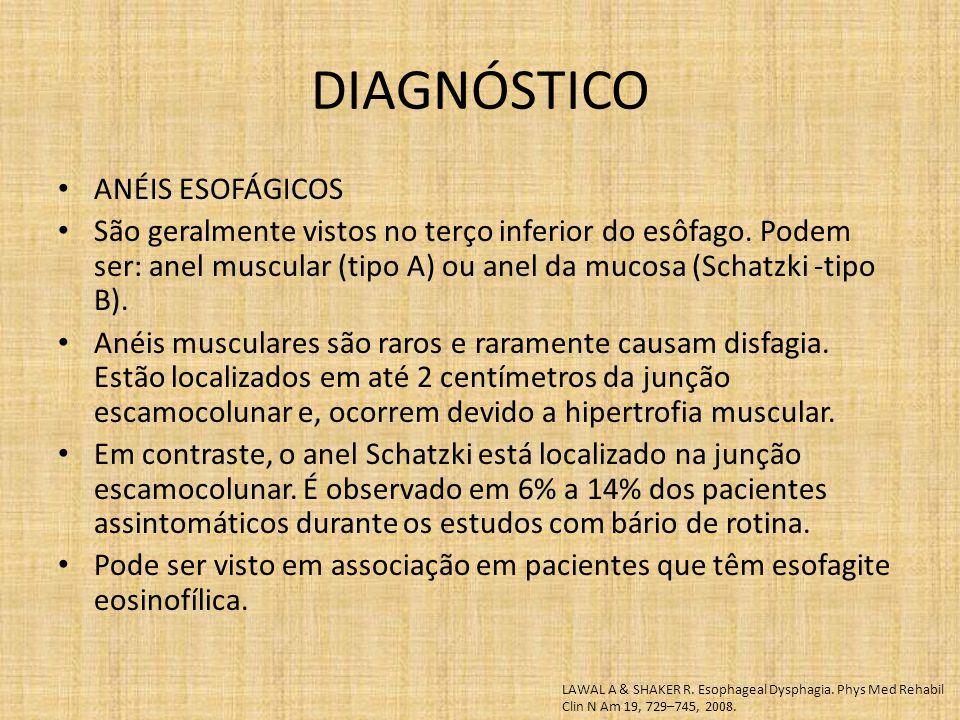 DIAGNÓSTICO ANÉIS ESOFÁGICOS