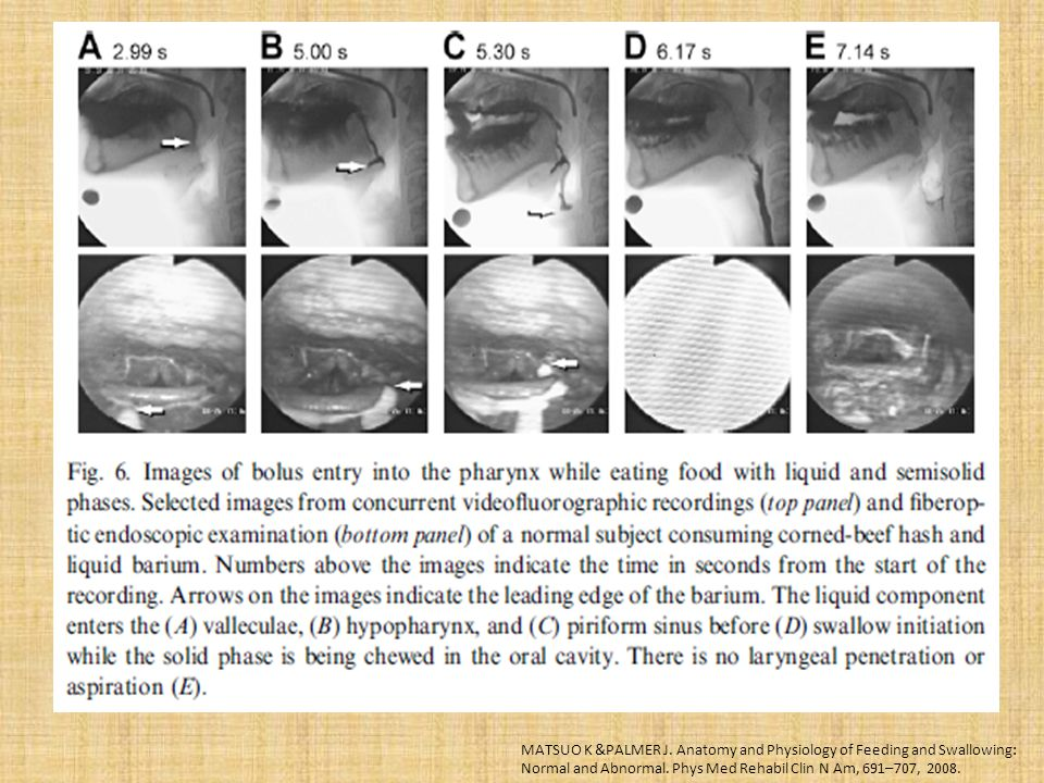 MATSUO K &PALMER J. Anatomy and Physiology of Feeding and Swallowing: Normal and Abnormal.