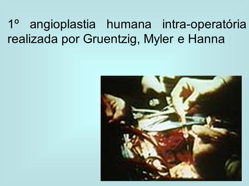 1º angioplastia humana intra-operatória realizada por Gruentzig, Myler e Hanna