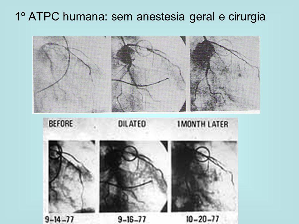 1º ATPC humana: sem anestesia geral e cirurgia