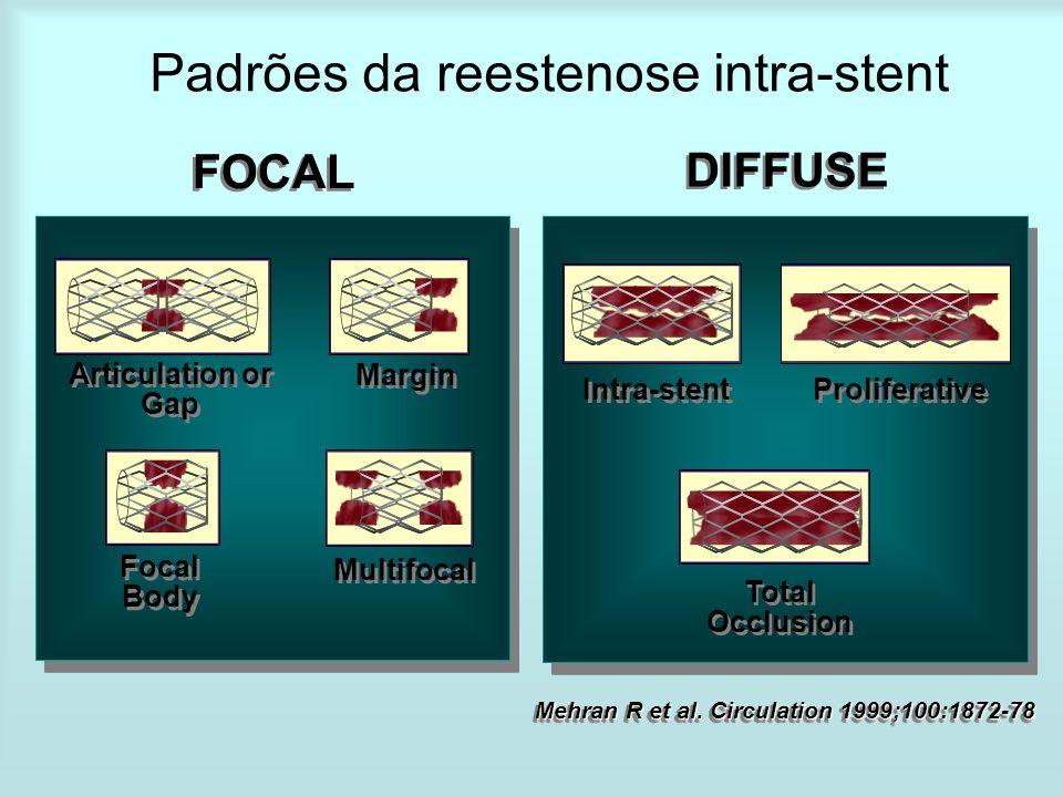 Padrões da reestenose intra-stent