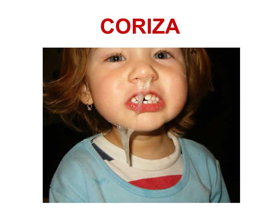 CORIZA