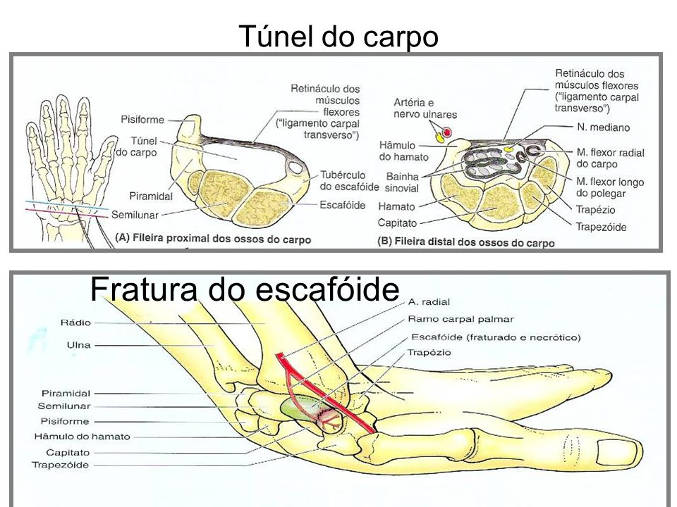 Túnel do carpo Fratura do escafóide