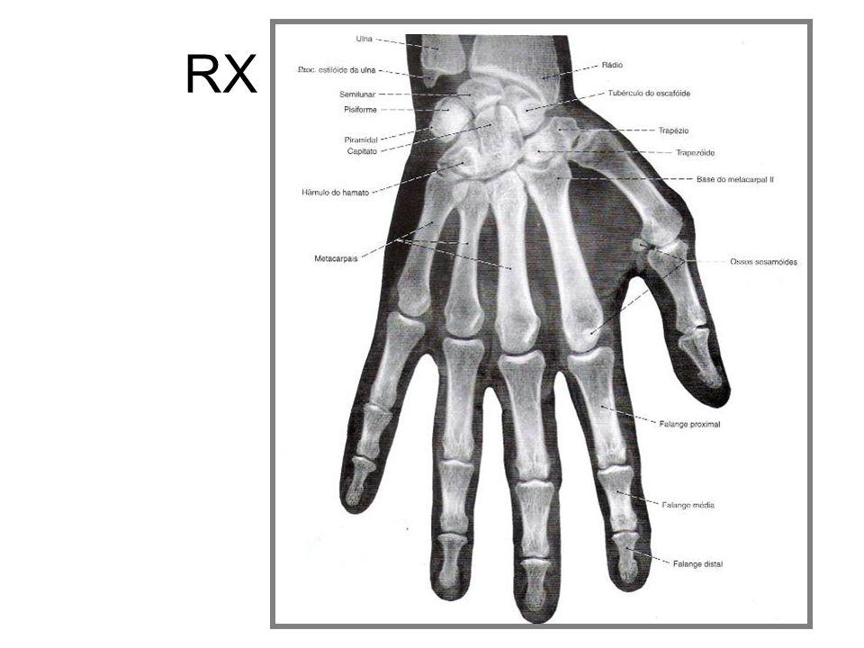 RX de mão (AP)