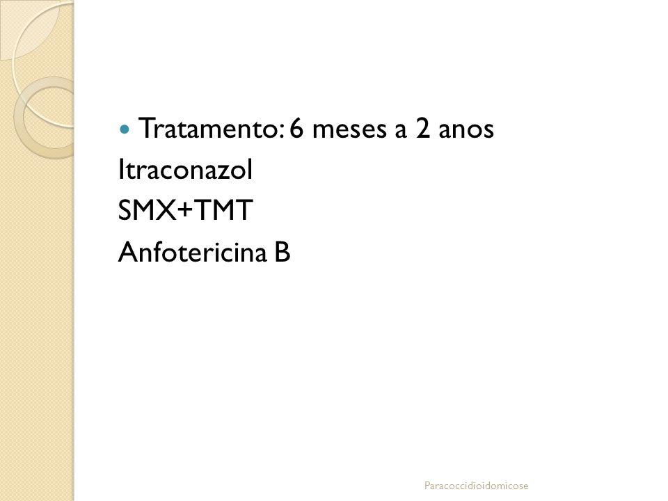 Tratamento: 6 meses a 2 anos Itraconazol SMX+TMT Anfotericina B