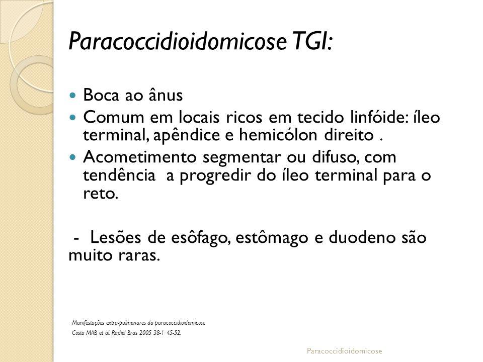 Paracoccidioidomicose TGI: