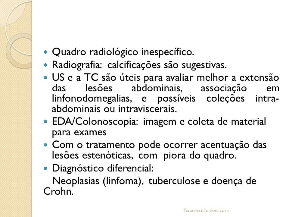 Quadro radiológico inespecífico.