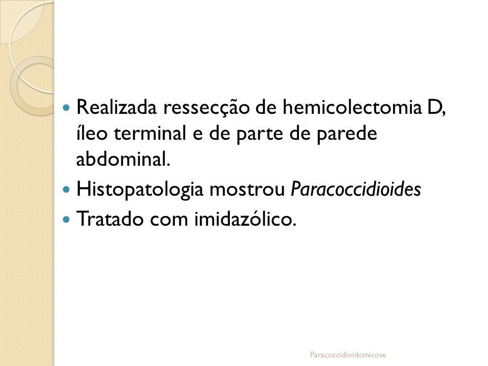 Histopatologia mostrou Paracoccidioides Tratado com imidazólico.