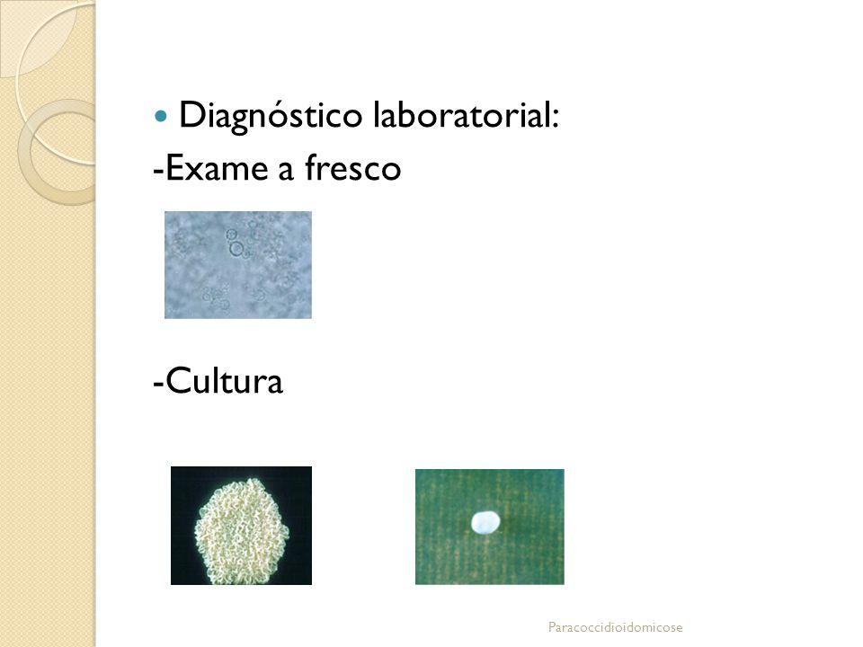 Diagnóstico laboratorial: -Exame a fresco