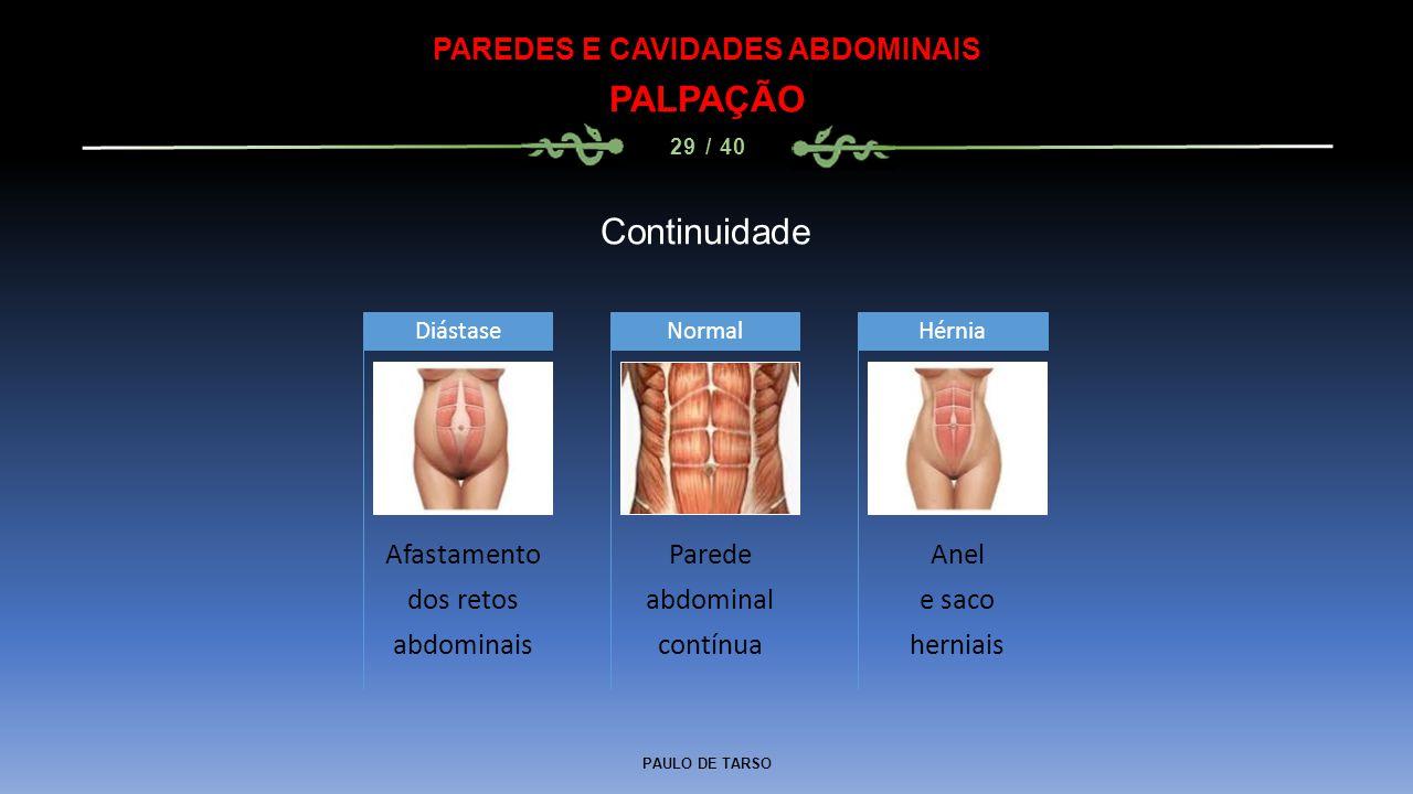 PAREDES E CAVIDADES ABDOMINAIS