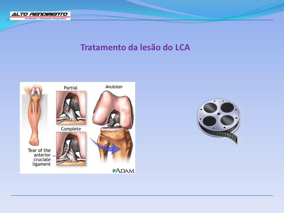 Tratamento da lesão do LCA