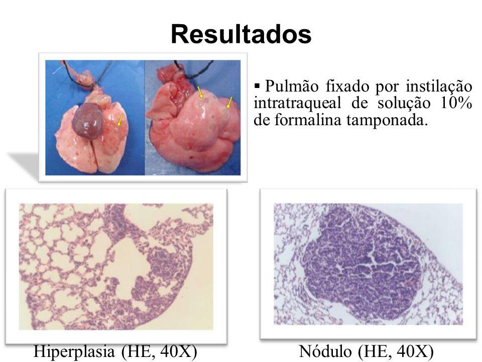 Resultados Hiperplasia (HE, 40X) Nódulo (HE, 40X)