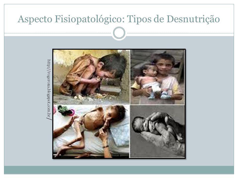 Aspecto Fisiopatológico: Tipos de Desnutrição