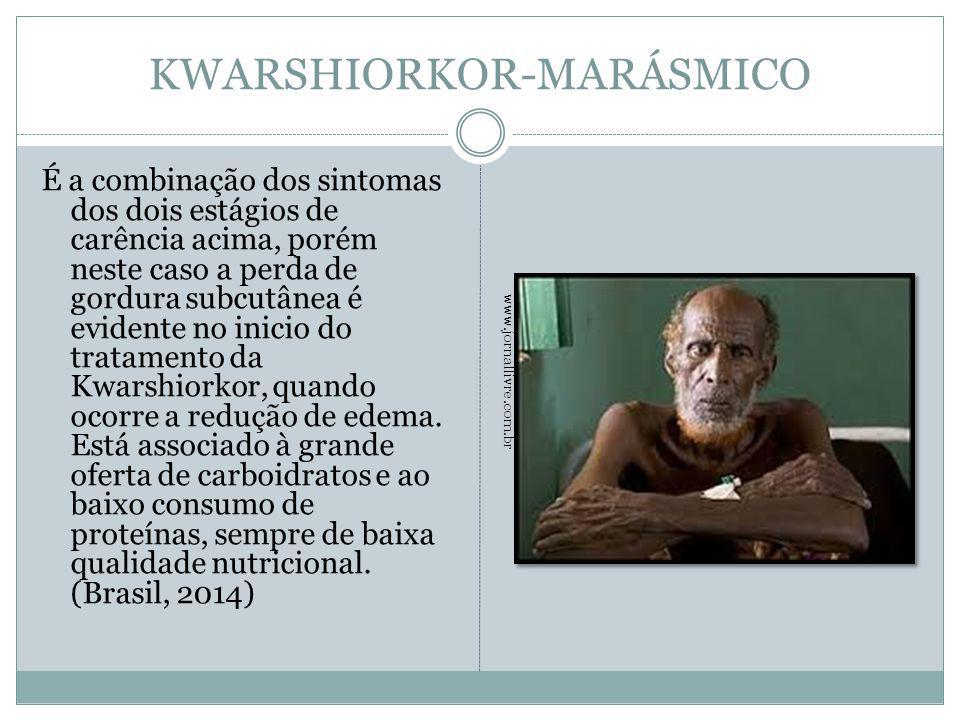 KWARSHIORKOR-MARÁSMICO