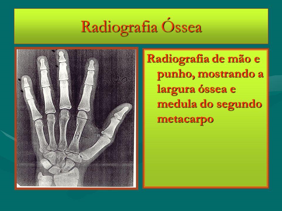 Radiografia Óssea Radiografia de mão e punho, mostrando a largura óssea e medula do segundo metacarpo.