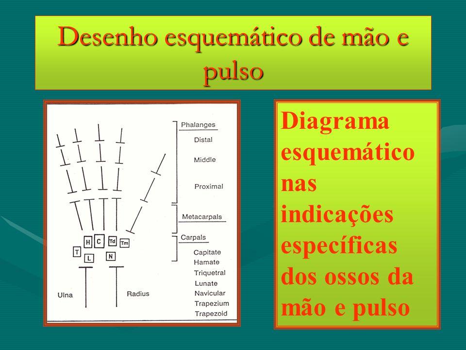 Desenho esquemático de mão e pulso