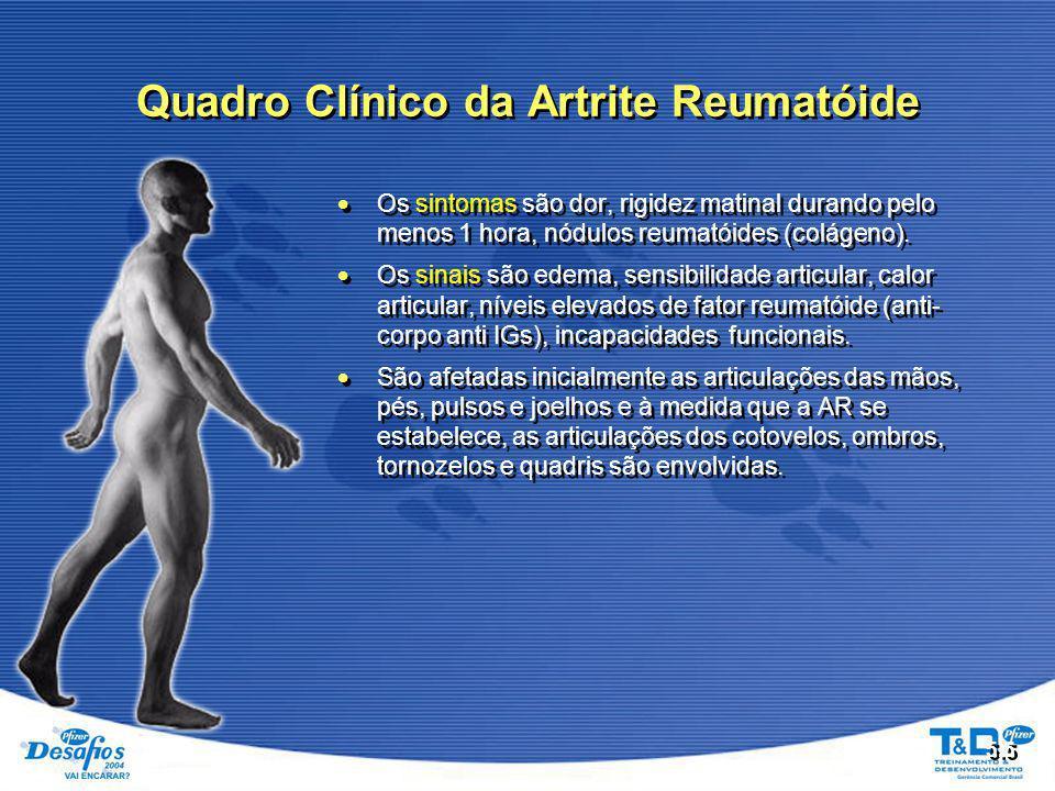 Quadro Clínico da Artrite Reumatóide