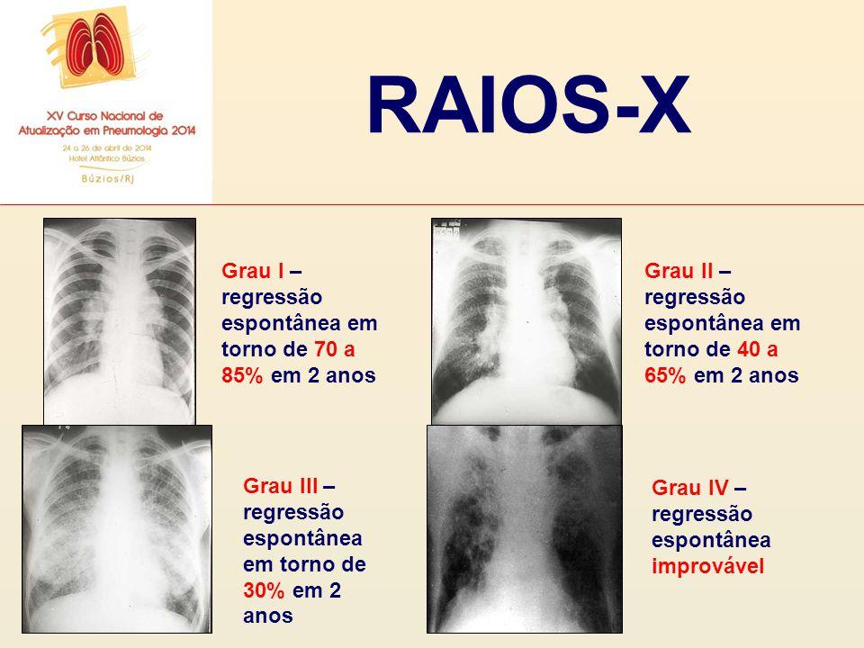 RAIOS-X Grau I – regressão espontânea em torno de 70 a 85% em 2 anos