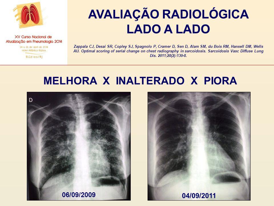 AVALIAÇÃO RADIOLÓGICA LADO A LADO MELHORA X INALTERADO X PIORA