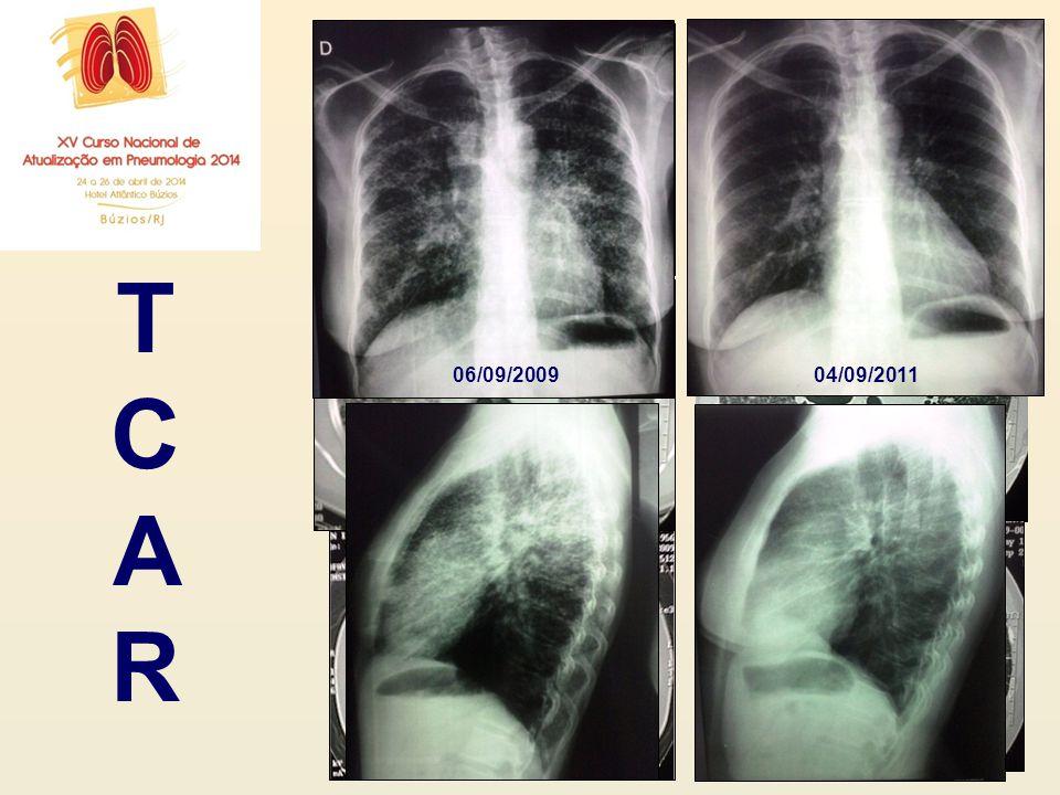 22/09/2009 04/09/2011 T C A R 06/09/2009 04/09/2011
