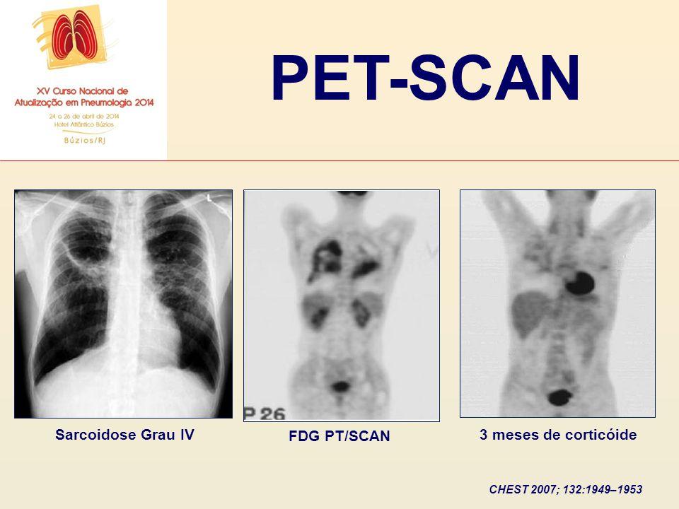 PET-SCAN Sarcoidose Grau IV FDG PT/SCAN 3 meses de corticóide