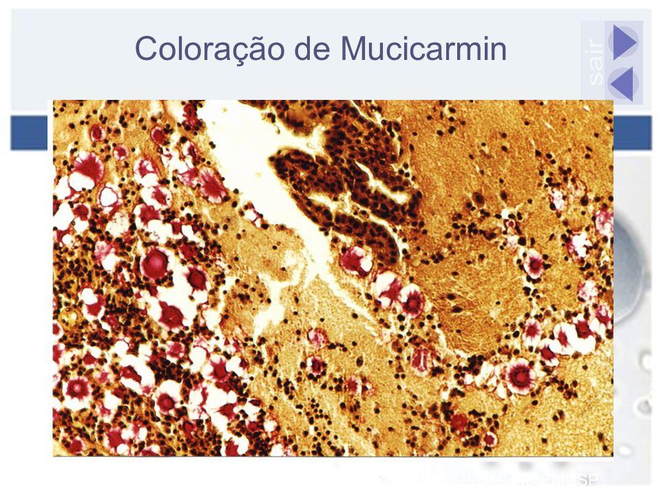 Coloração de Mucicarmin sair