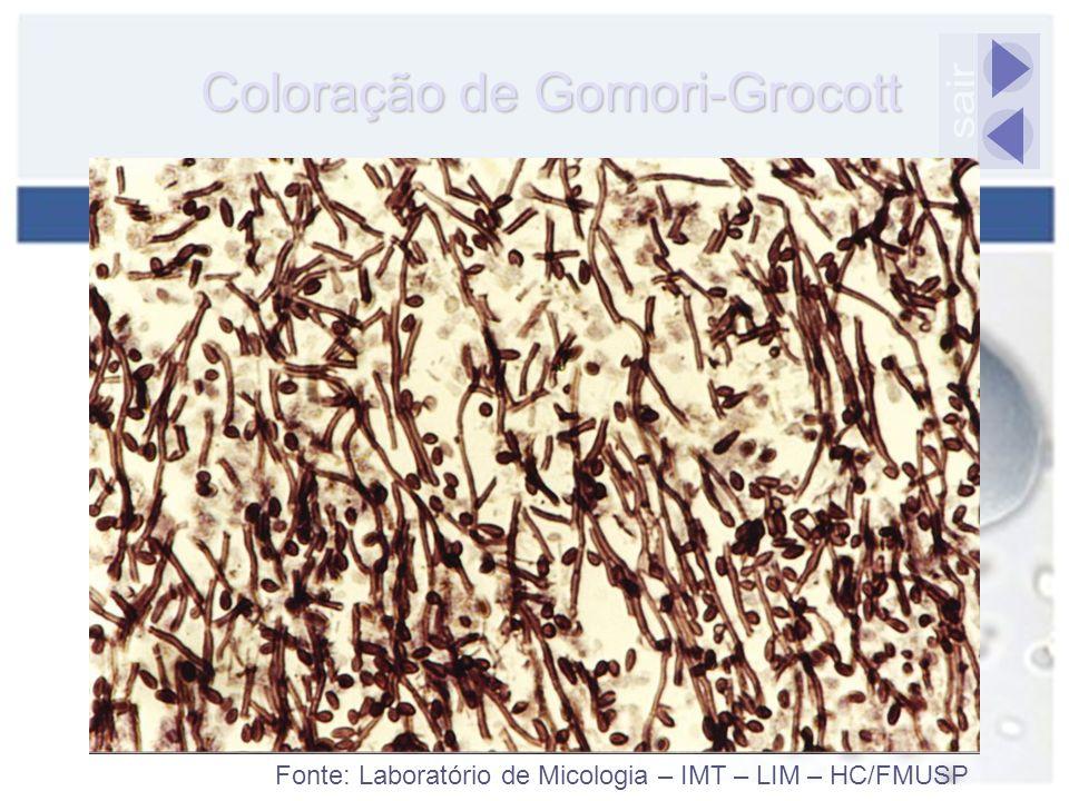 Coloração de Gomori-Grocott sair