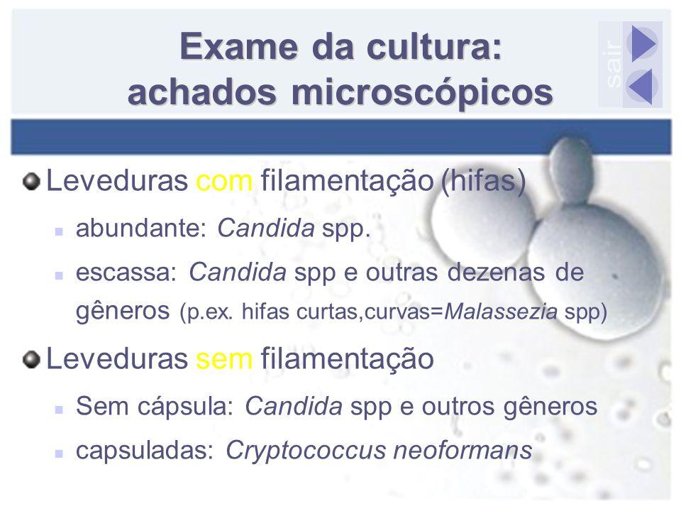 Exame da cultura: achados microscópicos