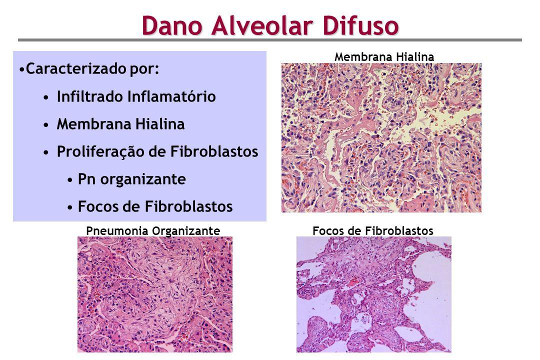 Dano Alveolar Difuso Caracterizado por: Infiltrado Inflamatório