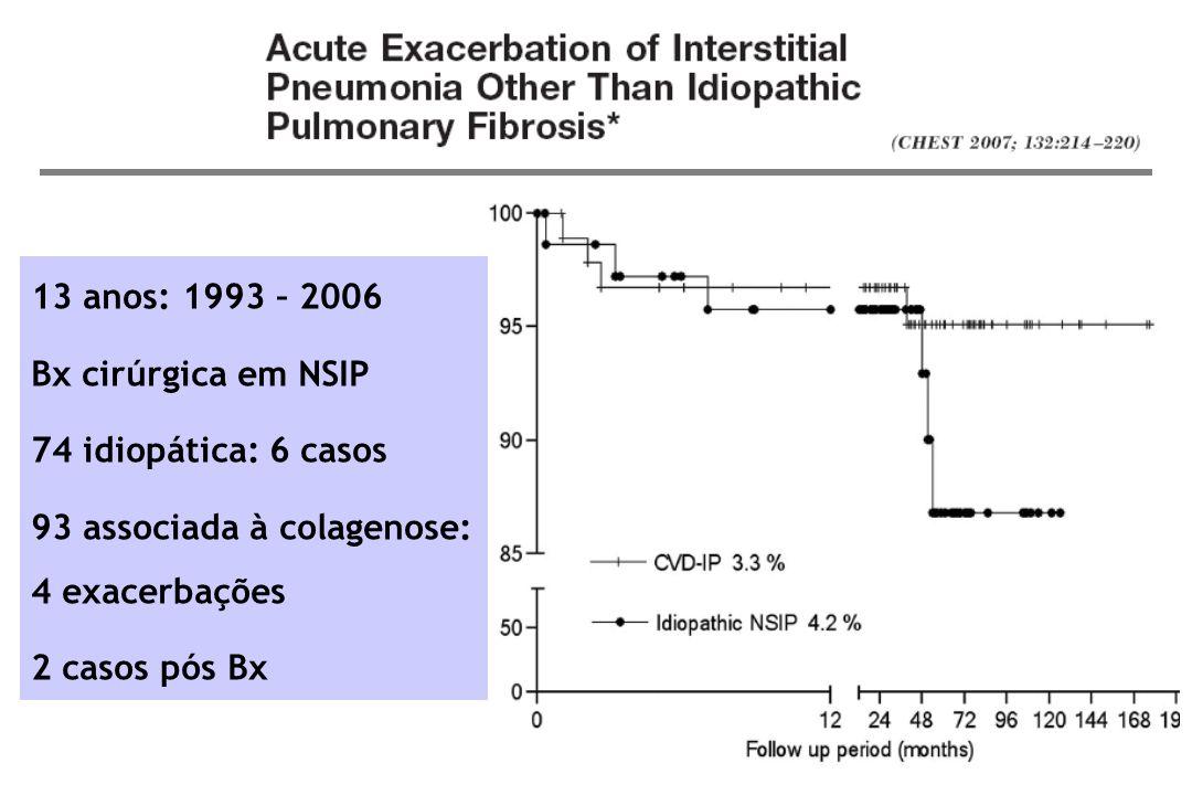 13 anos: 1993 – 2006 Bx cirúrgica em NSIP. 74 idiopática: 6 casos. 93 associada à colagenose: 4 exacerbações.