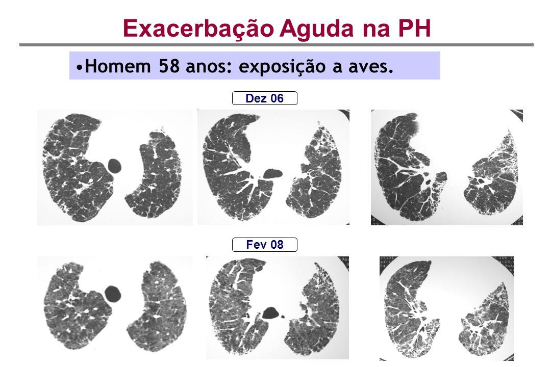 Exacerbação Aguda na PH