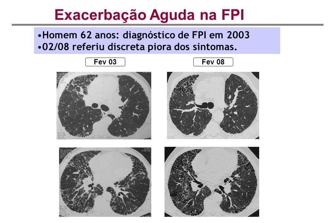 Exacerbação Aguda na FPI