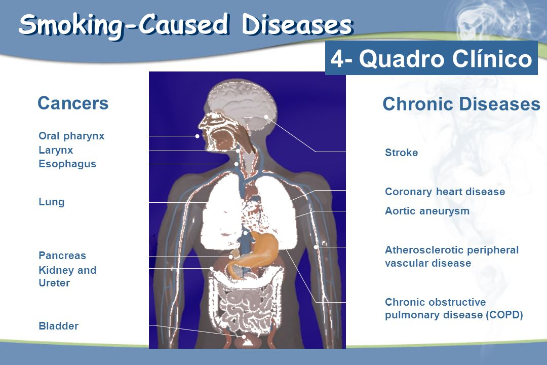 Smoking-Caused Diseases