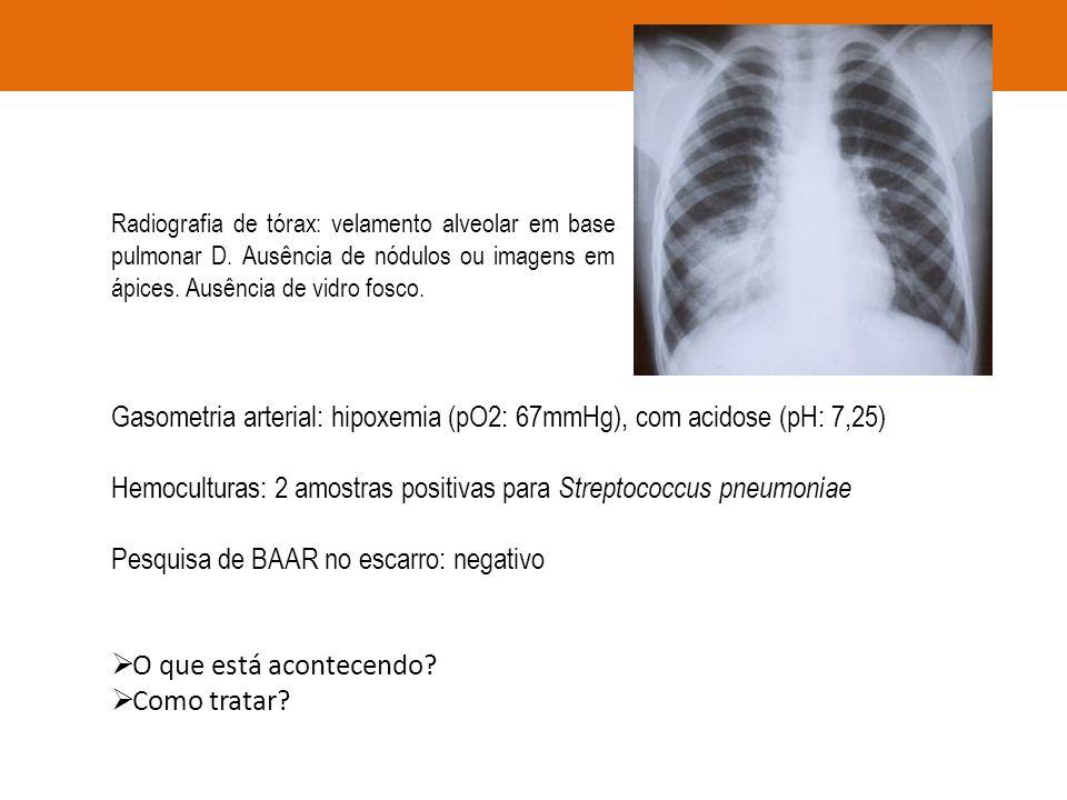 Gasometria arterial: hipoxemia (pO2: 67mmHg), com acidose (pH: 7,25)