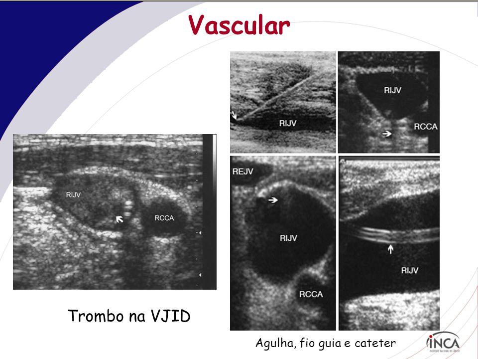 Vascular Trombo na VJID Agulha, fio guia e cateter
