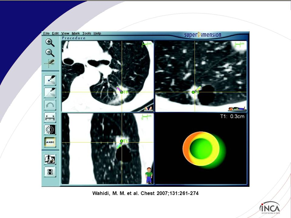Wahidi, M. M. et al. Chest 2007;131:261-274