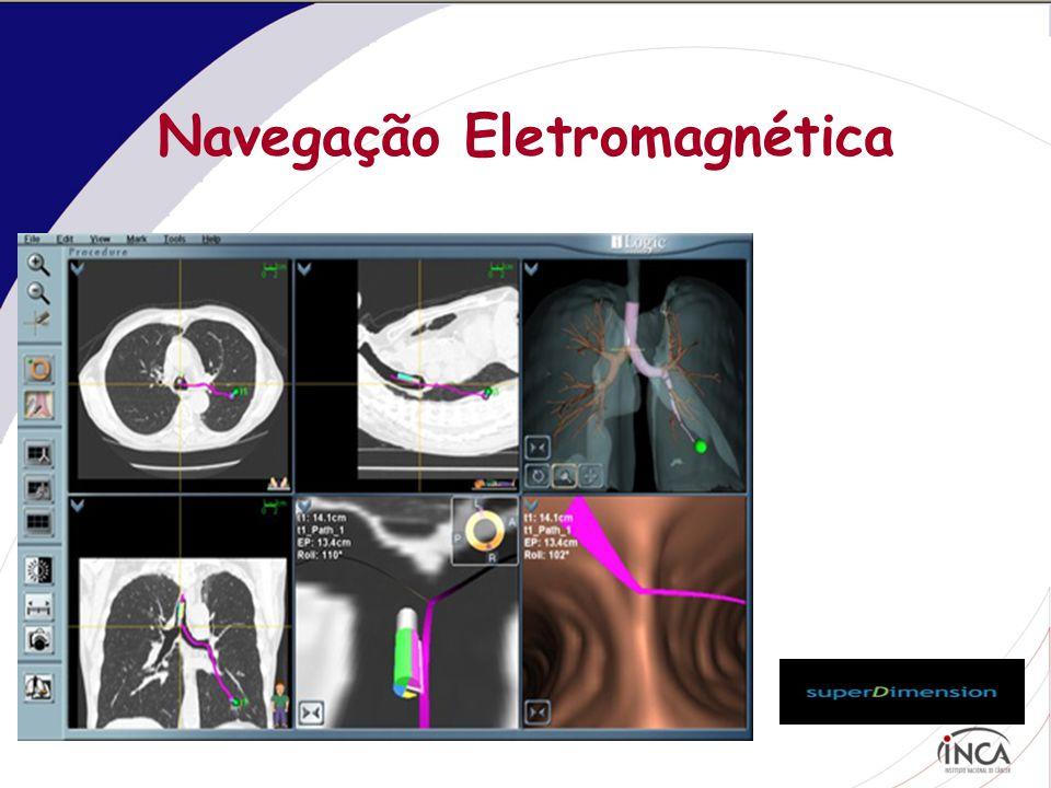 Navegação Eletromagnética