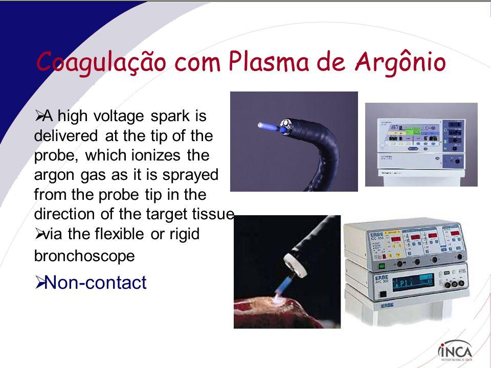 Coagulação com Plasma de Argônio