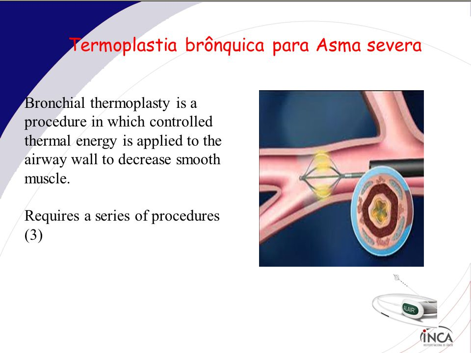 Termoplastia brônquica para Asma severa