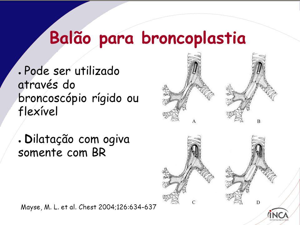 Balão para broncoplastia