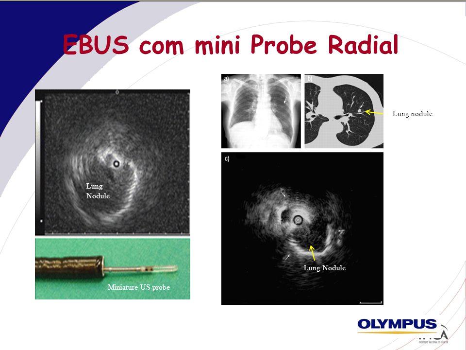 EBUS com mini Probe Radial