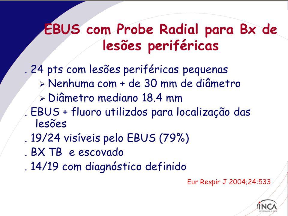 EBUS com Probe Radial para Bx de lesões periféricas