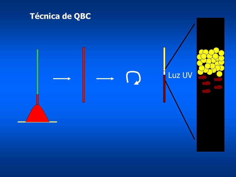 Técnica de QBC Luz UV