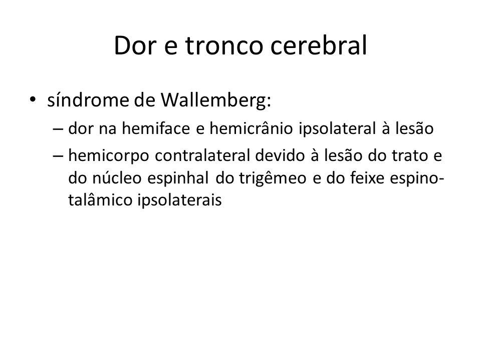 Dor e tronco cerebral síndrome de Wallemberg: