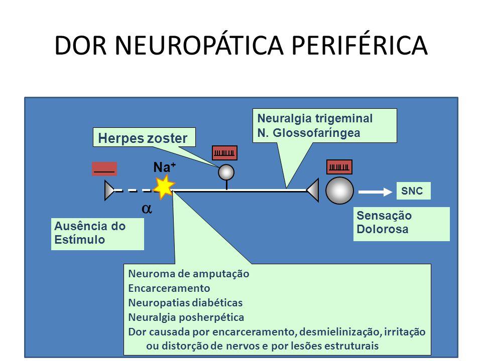 DOR NEUROPÁTICA PERIFÉRICA