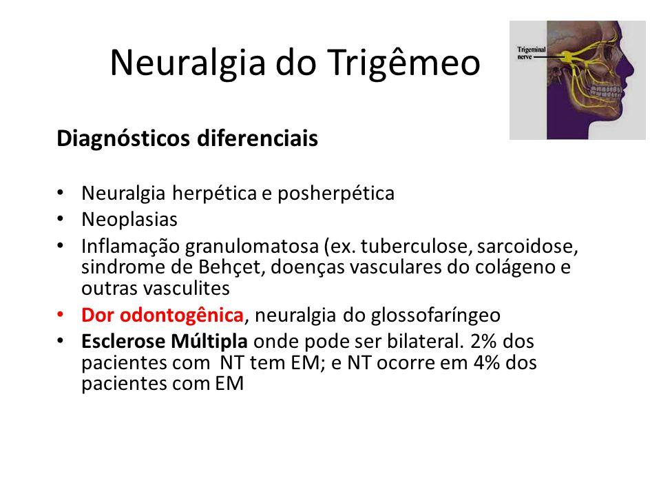 Neuralgia do Trigêmeo Diagnósticos diferenciais