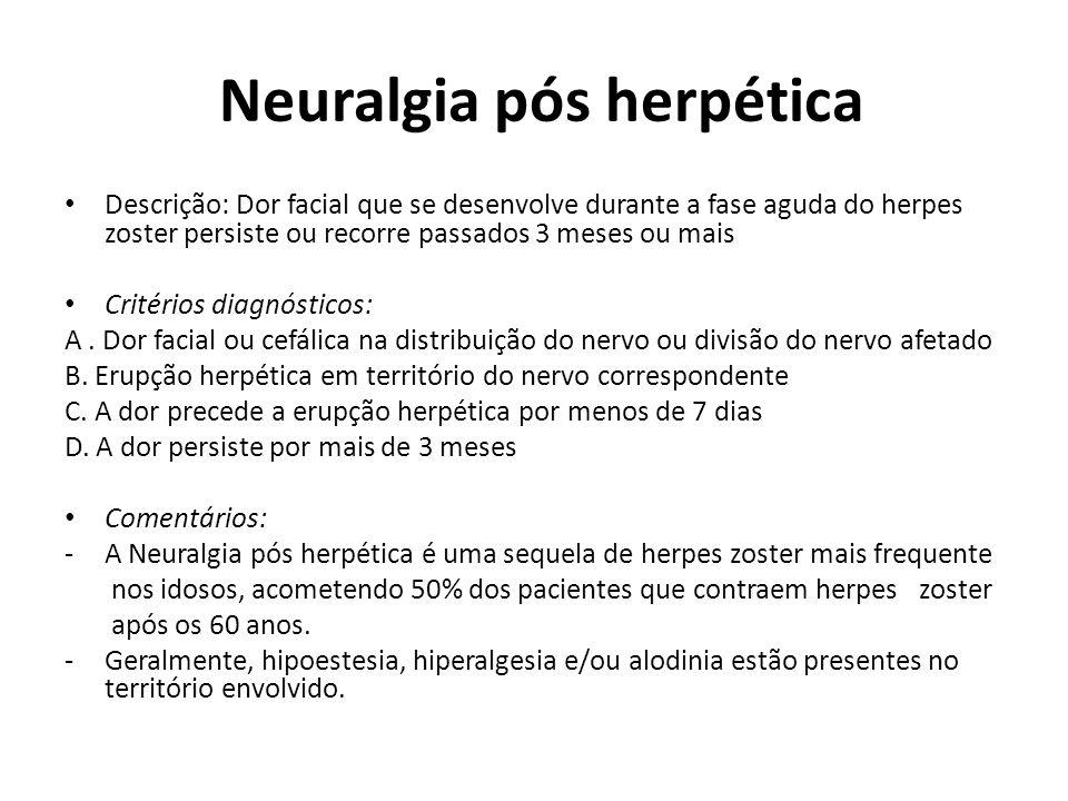 Neuralgia pós herpética